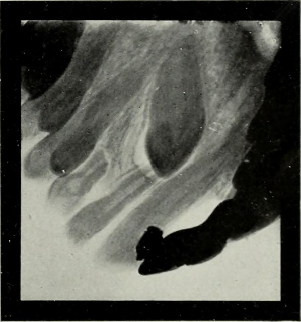 "Image from page 170 of ""Elementary and dental radiography"" (1813) — Aucune restriction de droits connue"